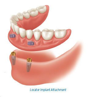 Tooth Implant Cornwall